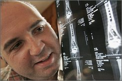 Dan Sivia shows X-rays of his foot and ankle at his home in Waukegan, Ill., Friday, Nov., 14, 2008.  Sivia had ankle replacement surgery that left his foot and ankle completely deformed, and the foot unable to move because of crushed ankle bones. (AP Photo/Nam Y. Huh)