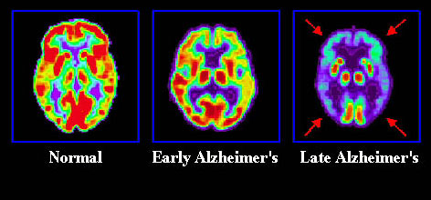 PET scans taken in 2000 show the metabolic degeneration of the brain of a patient with Alzheimer's as it progressively reduces brain function.