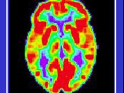 A study of believer's brains, based on scans such as this image of a normal brain, finds size differences  among denominations and those with no religious identity.