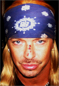 """Bret Michaels is nursing a busted nose, a cut lip and a neck injury following getting struck by a falling prop at the Tonys. """"I got my bell rung,"""" he says. """"It was like I had died and gone to Oz."""""""