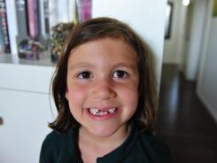 Emily Cussimanio, 5, has been visited five times by the Tooth Fairy this summer.