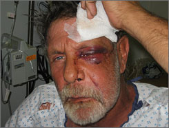 John D'Amico, a homeless day laborer shows injuries, Thursday, March 29, 2007, he sustained in an attack in Daytona Beach, Fla.
