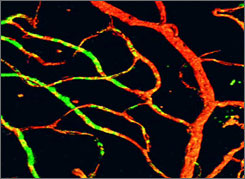 """Eye blood vessels were repaired with """"hemangioblasts,"""" a possible treatment for diabetes."""