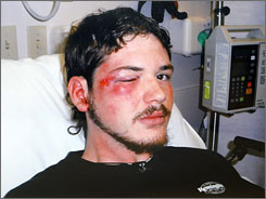 This photo released by the LaSalle Parish District Attorney's Office shows Justin Barker in the hospital after he was beaten on Dec. 4, 2006 in Jena, La.