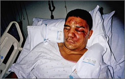 Frank Jude, shown hospitalized in 2005, testified to hearing racial slurs as he was beaten by off-duty Milwaukee officers. Officers' cooperation was a major challenge and key to the eventual convictions of seven former police officers in the case.