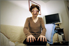 Chantal Sebire suffered from esthesioneuroblastoma, an uncommon malignant neoplasm. The tumor had burrowed through her sinuses and nasal cavities, causing her nose to swell to several times its original size and pushing one of her eye sockets out of her head. She was blind and in pain.