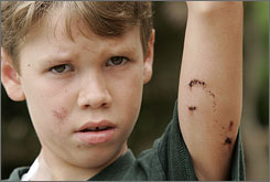 Evan Pala, 8, shows puncture wounds Tuesday in Severville, Tenn., from a bear attack when he was near LeConte Creek in the Great Smoky Mountains National Park Monday evening.