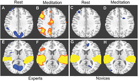 An fMRI display of responses to emotional sounds in long-term expert meditation practitioners