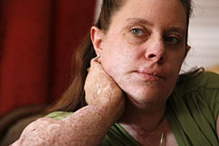 Linda Fisher, who was severely burned in The Station nightclub fire in 2003, is seen at her home in Cranston, R.I., on Feb. 6. Fisher suffered second and third degree burns to 30 percent of her body in the blaze that killed 100 people and injured more than 200.