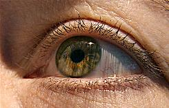 An estimated 1.75 million people have advanced age-related macular degeneration, and 7.3 million are in early stages of the disease, says researcher William Christen.