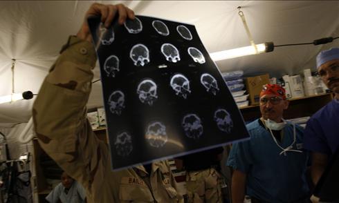 http://i.usatoday.net/news/_photos/2009/03/04/brainsurgeryx-large.jpg