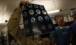 Air Force Lt. Col. Jeffrey Bailey, chief of trauma surgery, looks at the CT scan of a patient with a gunshot wound to the head at the Air Force Theater Hospital in Balad Iraq.