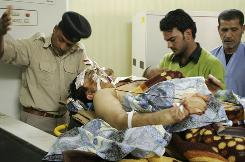 Ibrahim Shallal, 32, an Iraqiya Satellite Channel correspondent is treated at a hospital after he was wounded in a suicide bombing attack in Abu Ghraib, in Baghdad, Iraq.