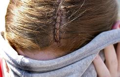 Stitches in the head of a Glenbrook North High School student involved in a girls football hazing that injured five in 2003 in Northbrook, Ill., an upscale suburb of Chicago.