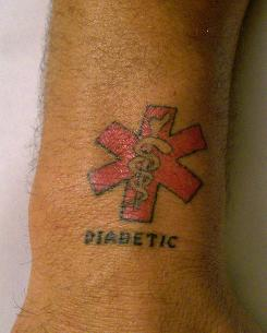 It's all on the wrist: This patient's tattoo reveals that he is a diabetic.