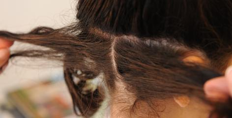 An example of how hair should be parted to the scalp so that each strand can be combed and both live lice and nits can be removed.