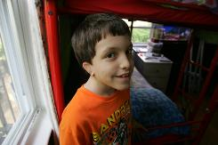 Ryan Cunningham, 8, didn't have an outer ear until his parent, who were worried he'd be teased as he got older, had a cosmetic surgeon give him one. He has one more surgery to go.