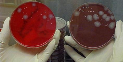 Anthrax bacteria grown in petri dishes from samples taken from people exposed on Capitol Hill in 2001.