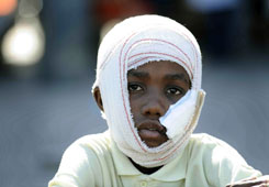 As life returns to as normal as possible in Haiti, children, some with serious injuries, are most at risk for exploitation.