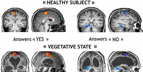 Brain scan results show the brain activity of a healthy subject and a patient in a coma answering questions.