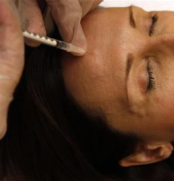 A woman gets a Botox injection in Arlington, Va., last June. A new study suggests that facial expressions may affect the feelings you have, not just what others' see, so paralyzing them with Botox could make you feel them less.