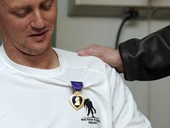 Army Spc. Gregory Miller wears the Purple Heart presented to him by Defense Secretary Robert Gates on March 7 in Kabul.