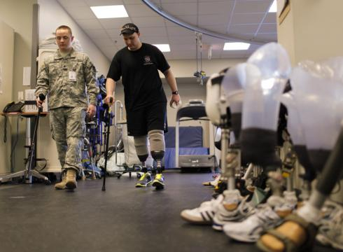 Some soldiers prefer amputations rather than damaged limbs, now that prosthetics are so good