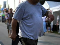 Obesity: Science says this man is not just a lazy sloth who lacks willpower.