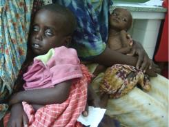 Malnourished children are cared for at Banadir hospital in Mogadishu, Somalia, Sunday.