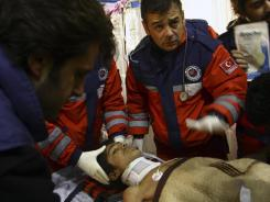 Turkish rescuers tend Ferhat Tokay, 13, after he was pulled from the rubble of a collapsed building in Ercis, Van, Turkey, early Friday.