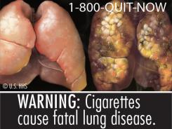 The FDA wants to use graphic health warnings such as this on cigarette packages sold in the U.S.
