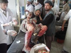 An Afghan man, wounded in a suicide attack on a bed at a hospital in Talaqan, Takhar province.