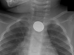 Button batteries can perforate the esophagus and create alkaline burns.