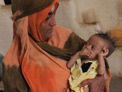 Yemeni mother Fatima Salim holds her 1-year-old malnourished daughter, Duma.