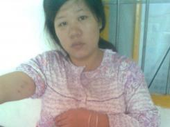 Pan Chunyan was taken by government workers and labor-inducing drugs were forcibly administered.