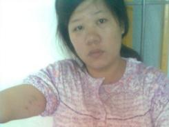 Pan Chunyan was forced to have an abortion in China.