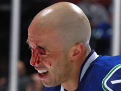 The Canucks' Manny Malhotra grimaces in pain after being cut on the eye during a March 16 game against the Avalanche.
