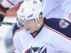 Columbus Blue Jackets forward Matt Calvert  gets up after taking a high stick to the face.