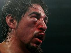 Antonio Margarito right eye was severely injured, and his orbital bone fractured around his eye after his fight against Manny Pacquiao last November.