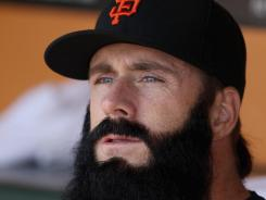 Giants closer Brian Wilson has structural damage in his elbow.