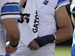 Detroit Lions quarterback Matthew Stafford has his hand in a cast after coming out of the game.