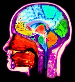 MRI of the brain.