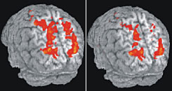 Images show parietal lobe activity while driving undisturbed, left, and while listening to sentences, when it dropped 37%.