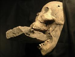 "This photo shows the remains of a female ""vampire"" from 16th-century Venice. She was buried with a brick in her mouth to prevent her feasting on plague victims."