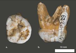 Two views of a 50,000-year-old tooth from the Denisova cave.