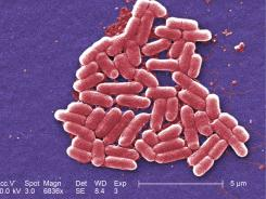 E. coli bacteria