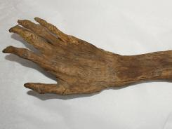 The National Museum of Civil War Medicine in Frederick, Md., is trying to determine whether this preserved human forearm is a relic of the Civil War Battle of Antietam, fought near Sharpsburg, Md., in September 1862.