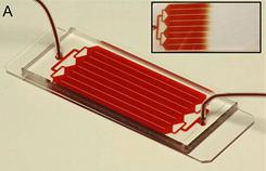 Handout image provided by PNAS Early Edition shows the HB-Chip for cancer blood testing in Boston, Massachusetts. The inset shows the uniform blood flow through the device. The test works by identifying rare circulating tumor cells (CTCs) present in the bloodstream of patients with cancer. 