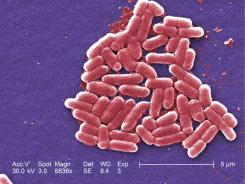 E. coli  was first recognized as a cause of illness in 1982.