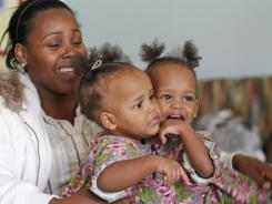 Conjoined twins Maria Tapia and Teresa Tapia, right, are held by their mother, Lisandra Sanatis as they play in a community room.